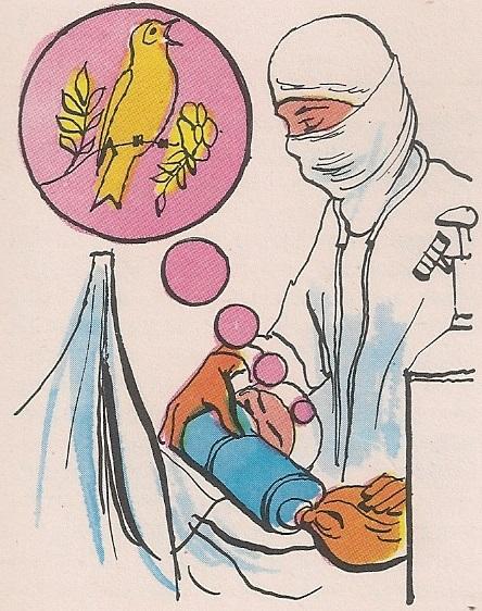 анестезија