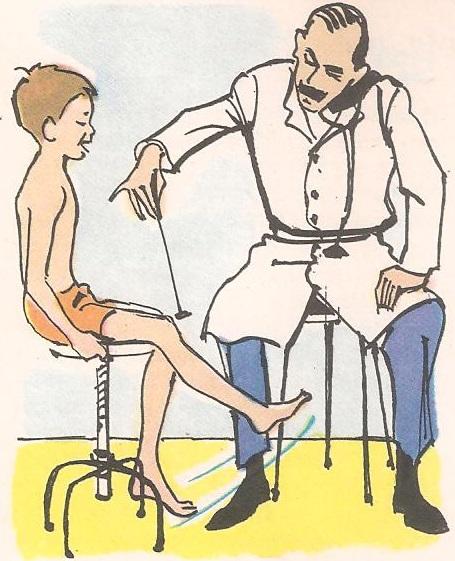 Зашто нас лекар лупка по колену?