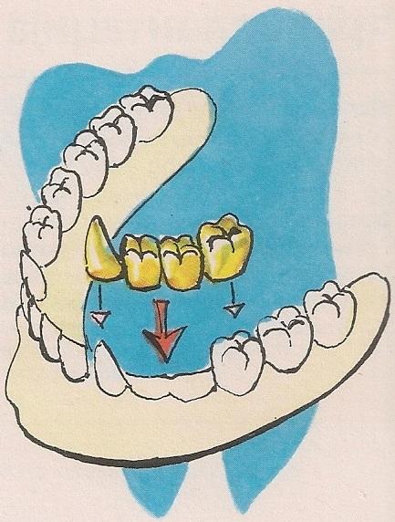 зубни мост