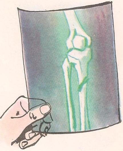 Како зарасте сломљена кост?